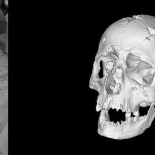 Skull - Human Reconstruction